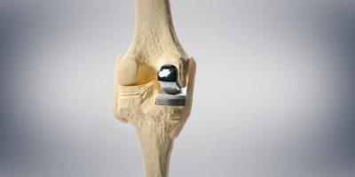 αρθροπλαστική-γόνατος-ορθοπαιδικός-χειρουργός-καρλιαύτης-κωνσταντίνος-αμπελόκηποι-αθήνα